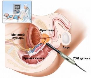 aktualnye-metody-lecheniya-venoznogo-zastoya-krovi-v-malom-tazu-u-muzhchin