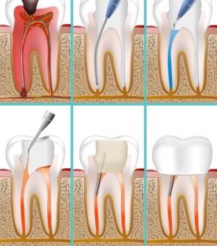 chem-opasen-granuliruyushchij-periodontit-prichiny-razvitiya-periodontita