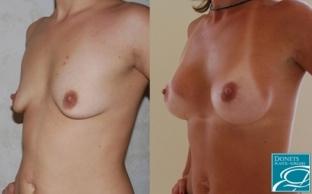 бронте -городок женские груди после родов порно смотреть девушки латексе