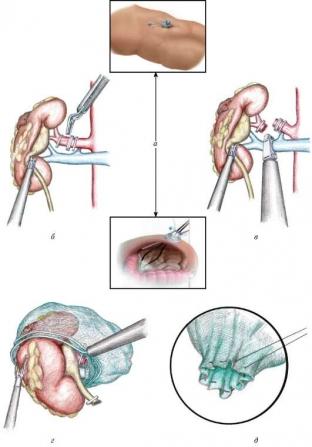 lechenie-raka-pochki-kak-spasti-zhizn-patsientu