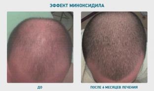 ot-yazvy-zheludka-do-alopetsii-osobennosti-primeneniya-minoksidila