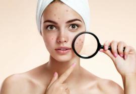 5 аспириновых масок для лечения акне на лице