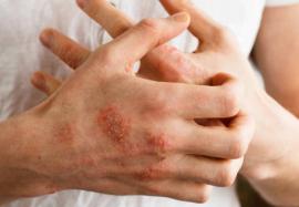 Аллергическая экзема может быть фактором развития пищевой аллергии