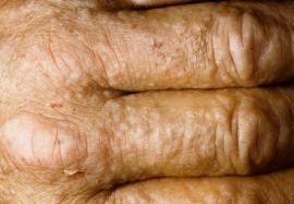 Аллергические осложнения грибковых поражений: эффективные методы лечения