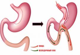 Бариатрическая операция – эффективный метод хирургического лечения ожирения
