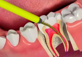 Депульпированный зуб: 5 правил ухода за зубом без нерва