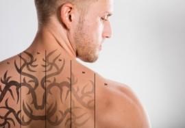 Эффективное удаление татуировок с помощью Q-switch лазера