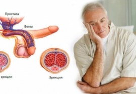 Эректильная дисфункция и артериальная гипертензия: патологическая связь