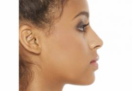 Гармонизация профиля лица: техника проведения нехирургической профилопластики