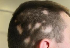 Гнездная алопеция – безобидное выпадение волос или тревожный сигнал