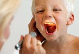 Гнойная ангина у ребенка летом: как вылечить