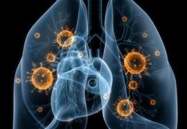 Гриппозная пневмония: влияют ли кортикостероиды на летальность