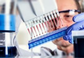 Инфекционный мононуклеоз: современные методы диагностики заболевания