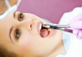 Избегаем осложнений после экстракции зуба: современные рекомендации