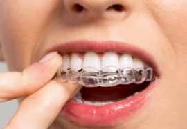 Как исправить прикус: современные методы ортодонтического лечения