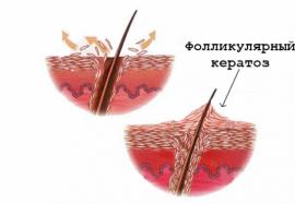 Как избавиться от «гусиной кожи»: методы борьбы с фолликулярным кератозом