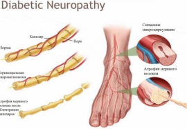 Как распознать диабетическую нейропатию