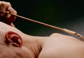 Какие патологические состояния часто сопровождаются хроническим зудом