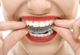 Капы для выравнивания зубов как способ устранить дефекты и сохранить здоровье