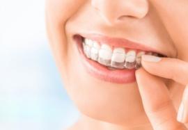 Капы для выравнивания зубов: разновидности и особенности