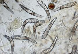 Клещ-Демодекс: так ли страшен паразит, как о нем говорят