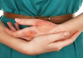 Коварная токсикодермия: основные клинические формы заболевания
