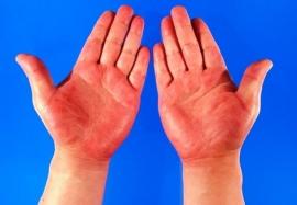 Красные перчатки, носки и капюшон: клинические проявления псевдотуберкулёза