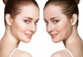 Лечение акне: секреты эффективного ухода за кожей