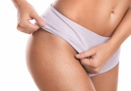 Лечение стрий: какие методы наиболее эффективны в устранении растяжек на коже