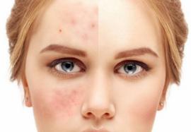 Лечение угревой сыпи и постакне: как избавиться от шрамов