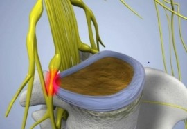 Лечение защемленного нерва – чем раньше, тем лучше