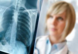 Лихорадка и кашель могут быть признаками воспаления легких