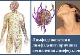 Лимфаденопатия и лимфаденит: причины воспаления лимфоузлов