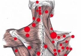 Массаж триггерных точек при головной боли
