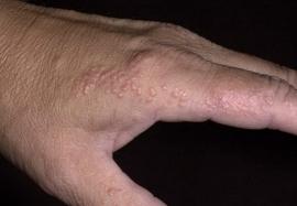 Микиды: аллергические осложнения грибковых поражений