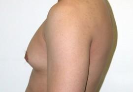 Неженские проблемы с грудью: гинекомастия у мужчин