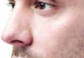 Омоложение средней трети лица у мужчин инъекциями филлеров на основе ГК