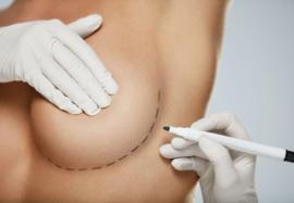 Операция по увеличению груди: плюсы и минусы улучшения бюста