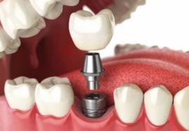 Особенности применения разных видов имплантатов зубов
