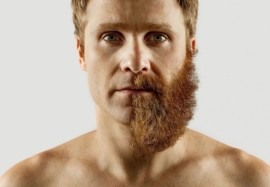 Особенности трансплантации волос у мужчин в зоне бороды и усов