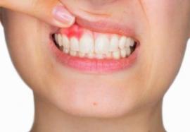 Остеомиелит челюсти – как вовремя обнаружить болезнь