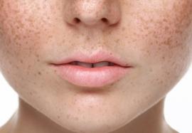 Пигментации кожи: бьюти тренд или актуальная проблема