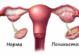 Поликистоз яичников: симптомы и лечение заболевания