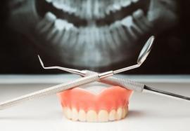 Поставить зубные импланты или вложиться в лечение: что выгоднее