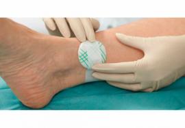 Повязка, подключенная к электрическому току: терапия инфицированных ран