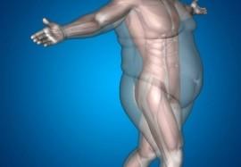 Причины лишнего веса: 9 болезней, от которых поправляются