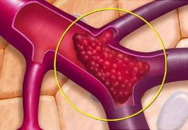 Причины тромбов: почему кровь «предает» нас и как этого избежать