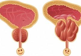 Простатовезикулит: почему возникает заболевание, и как его лечить