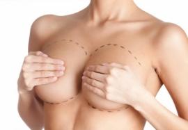 Риск аутоиммунных заболеваний после установки грудных имплантов