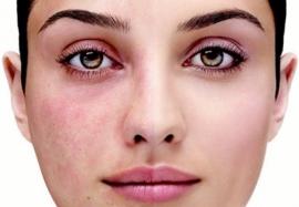Розацеа на лице: 5 фактов, о которых следует знать